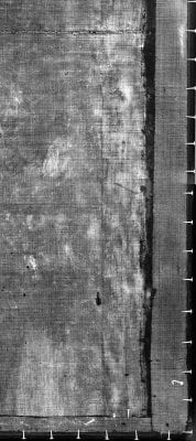 Fig. 6 Lower right detail of the X-ray showing flattened original tacking edge and added strips B and C